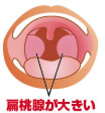 白い 写真 腺 扁桃